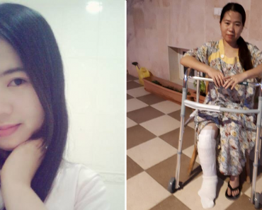 OFW Who Met Accident Seeks Help after Employer Refuses to Let Her Go Home