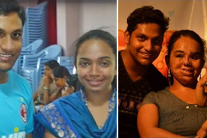 This Guy Earned Admiration for Marrying Girlfriend after She Met a Horrific Accident