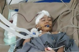 This Little Girl Is Fighting For Her Life After Being Shot In The Head, The Same Bullet Killed Her Dad