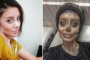 Woman Goes Through 50 Operations to Look Like Angelina Jolie