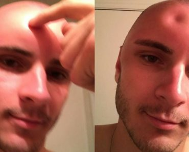 Man Gets Sunburned To The Point Of Poking a Dent On His Forehead