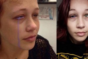 Model Wants Eye Removed after Botched Scleral Tattoo that Made Her 'Cry' Purple Tears