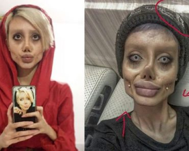 Guy Points Out 'Photoshop Marks' on Photos of Woman Who Got 50 Surgeries to Look Like Angelina