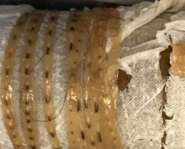 5-Foot Long Tapeworm 'Wiggles' Out of Man's Body, He Thinks It's from Sushi