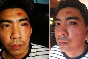 Grab Driver Attacked by Passenger Who Accused Him of Stealing Phone Left in Car