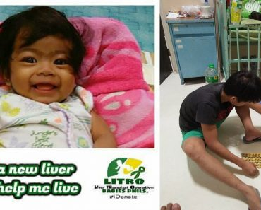 Got Coins and Spare Change? You Can Donate Them to This Baby Who's Fighting Biliary Atresia