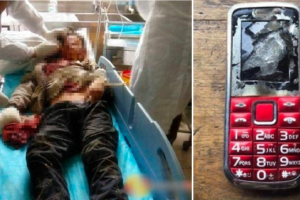 Phone Explodes in 12-Year-Old Boy's Hand, Makes Him Lose Finger and Vision in One Eye