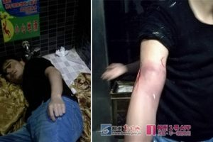 Guy Injures Self While Trying to Retrieve iPhone 8 He Dropped in Café Toilet