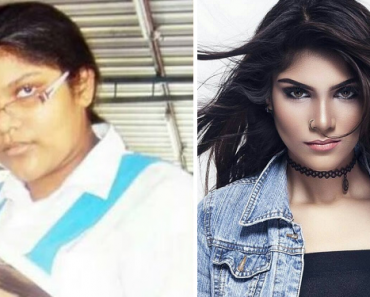 Bullied in School for Being Ugly, She Transforms to a Gorgeous Woman