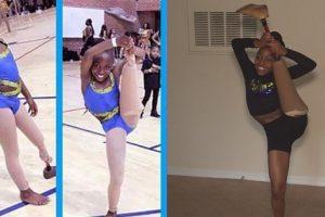 Girl with Prosthetic Leg Goes Viral for Impressive Dance Moves