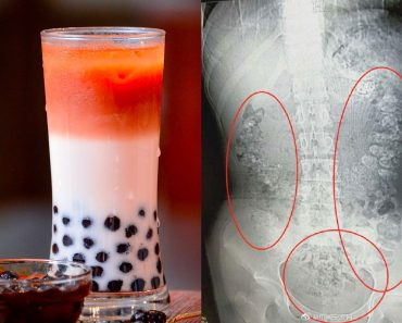 Doctor Finds Hundreds of Undigested Milk Tea Pearls in 14-Year-Old Girl's Stomach
