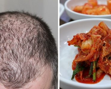 """Study Shows Kimchi Can Promote Hair Growth, Touts the Korean Food as """"Cure for Baldness"""""""