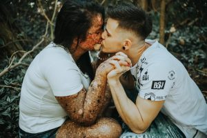Guy Praised for Marrying Girlfriend Despite Her Incurable Skin Condition