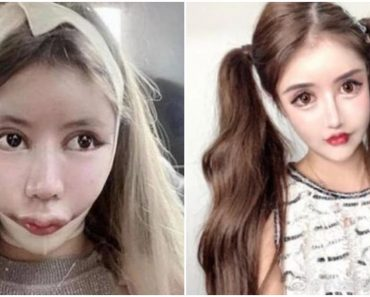 15-Year-Old Influencer Admits Undergoing 100+ Surgeries to Look Like a Doll
