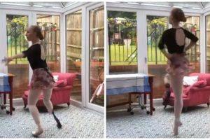 Dad Goes Viral after Appealing for 'En Pointe' Prosthetic for Ballerina Daughter