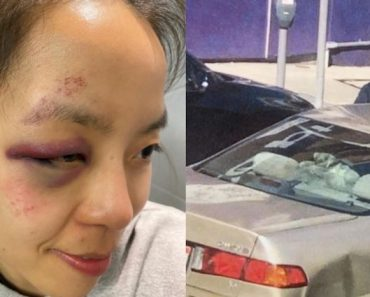 Woman Dragged by Getaway Car After Refusing to Give Up Bag, But Still Forgives the Suspects