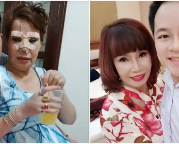 62-Year-Old Woman Undergoes Surgery to Look Beautiful after Marrying 26-Year-Old Man